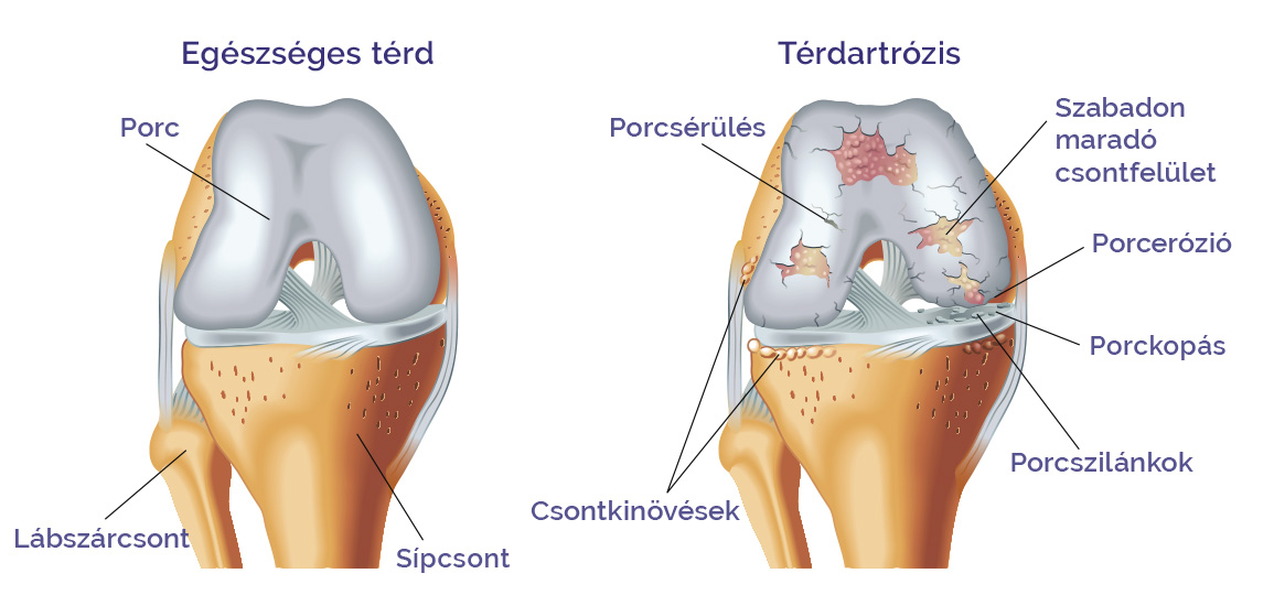 magnézium az artrózis kezelésére